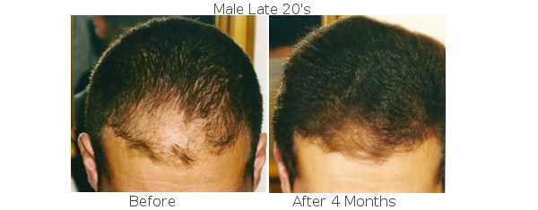 Propecia And Rogaine Stop Hair Loss Temple Region