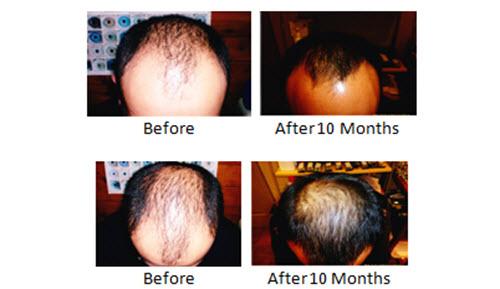 Male Hair Regrowth 59